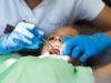 DM_il-dentista-moderno_incappucciamento-pulpare.jpg