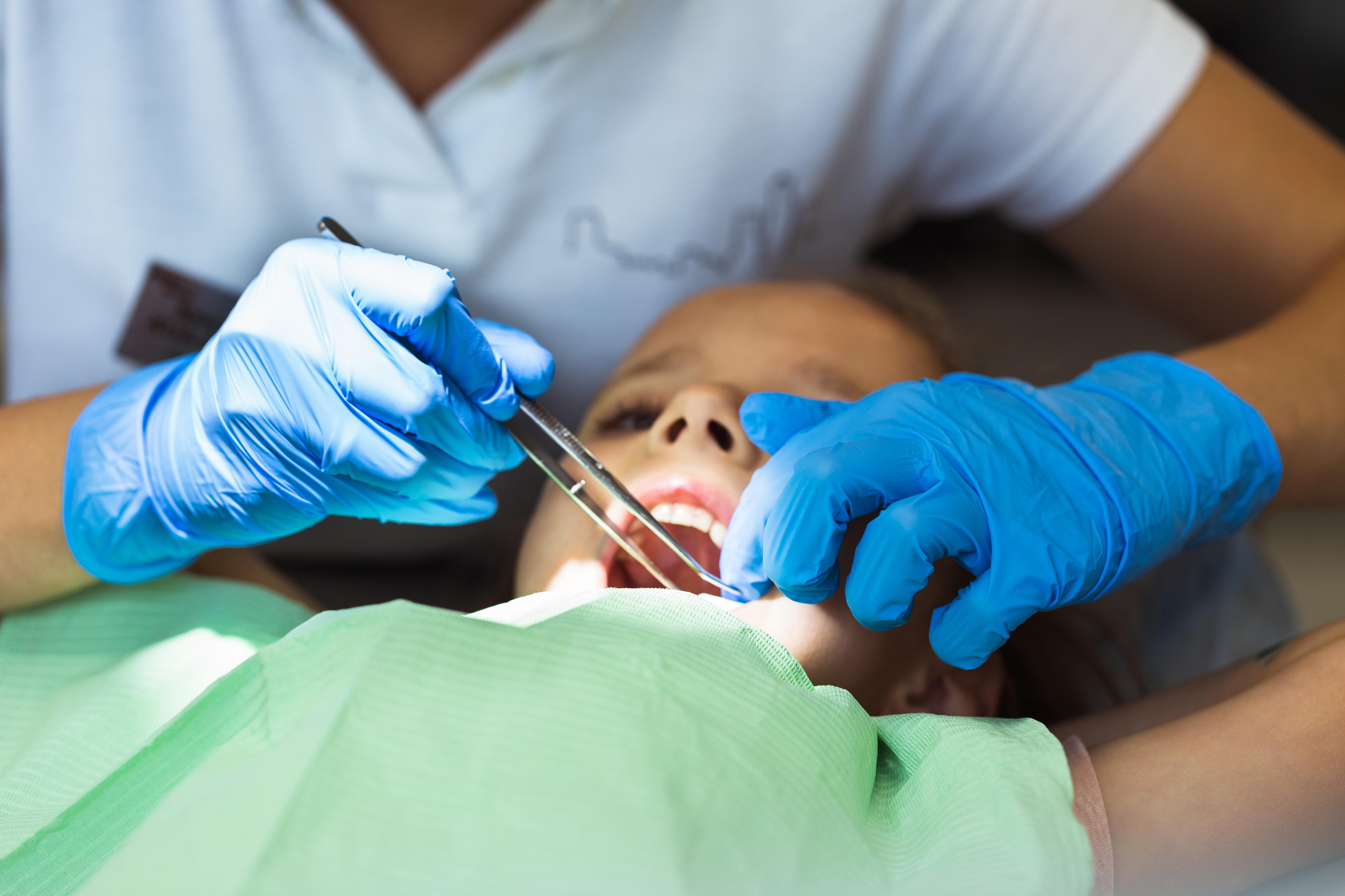 DM_il-dentista-moderno_incappucciamento-pulpare-dente vitale