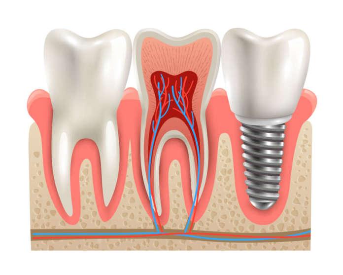 DM_il-dentista-moderno_Efficacia-ai-lungo-termini-di-un-protocollo-di-implantologia-immediata.jpg