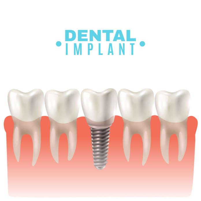 DM_il-dentista-moderno_impianti-inclinati_impianti-angolati