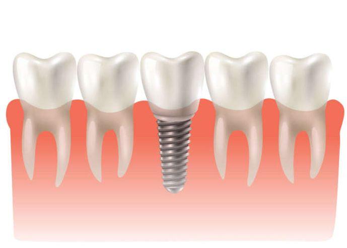 fallimento impianti precoci Il dentista-moderno_impianti angolati