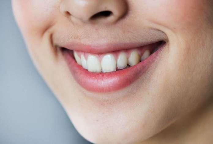 DM_il dentista moderno_espansione del palato