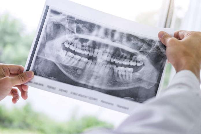 DM_il-dentista-moderno_rigenerazione-ossea-verticale