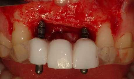 PGR_dima_chirurgica_Il_Dentista_Moderno