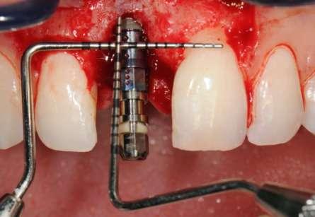 PGR_posizionamento_spalla_implantare_Il_Dentista_Moderno