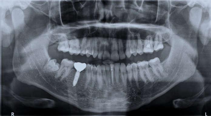 DM_IL-DENTISTA-MODERNO_radiografia_impianto-dentale_postestrattivi