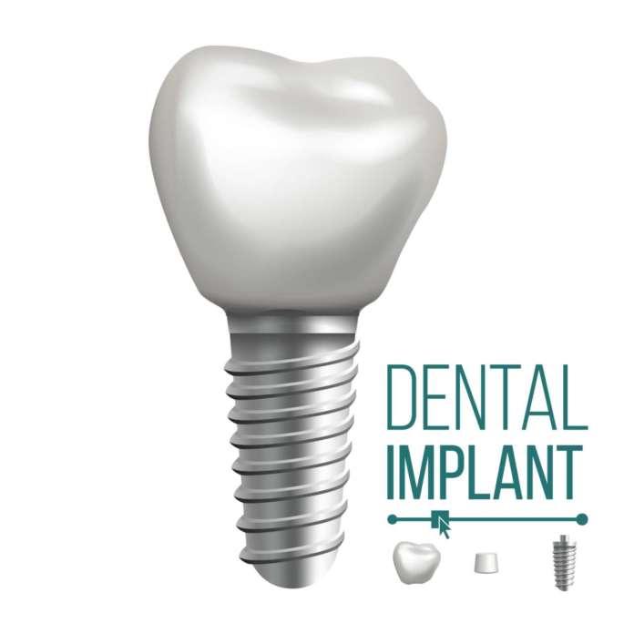 DM_il-dentista-moderno_Impianti-dentali_superficie-implantare.jpg