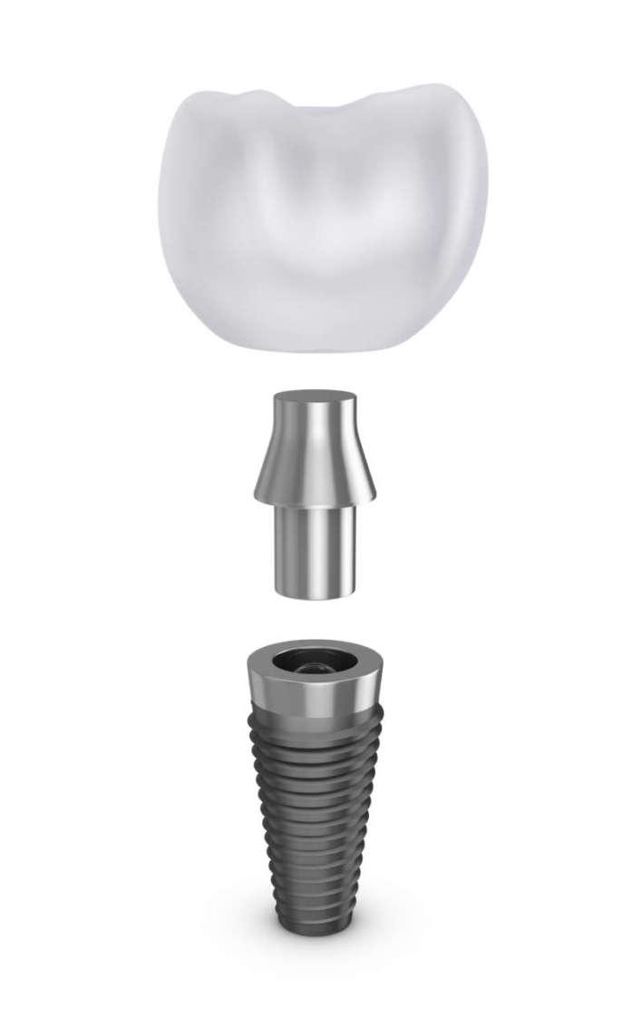 DM_il-dentista-moderno_impianto_implantologia_isq_monitoraggio implantare
