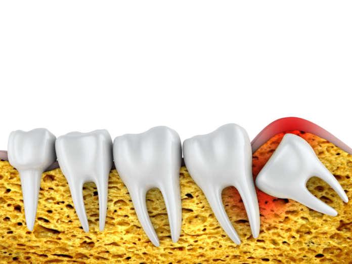 DM_il-dentista-moderno_terzo-molare_dente-del-giudizio_terzo molare