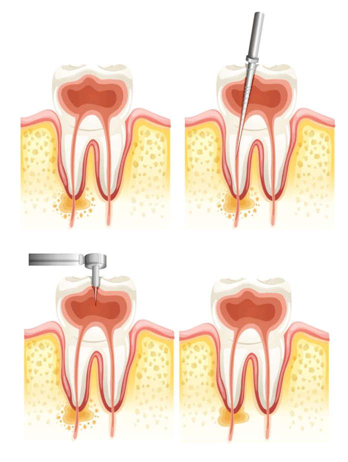 DM_il-dentoista-moderno_endodonzia_terapia-canalare_ecpgrafia in endodonzia