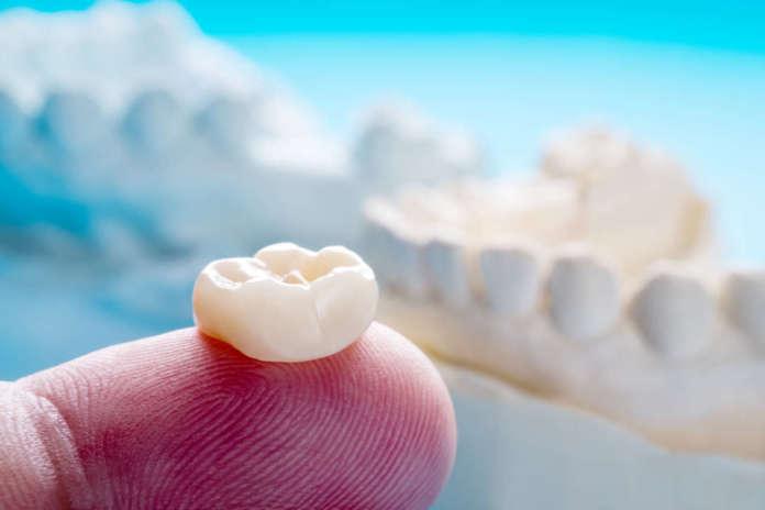 DM_il-dentista-moderno_zirconia_materiali-dentari_corona.jpg