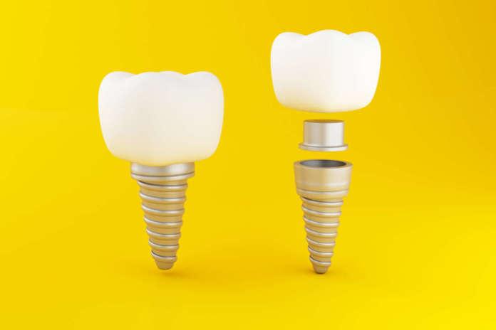 DM_il-dentista-moderno_Possibile-vantaggio-dell'uso-di-abutment-in-zirconia-riduzione-della-perdita-di-osso-crestale.