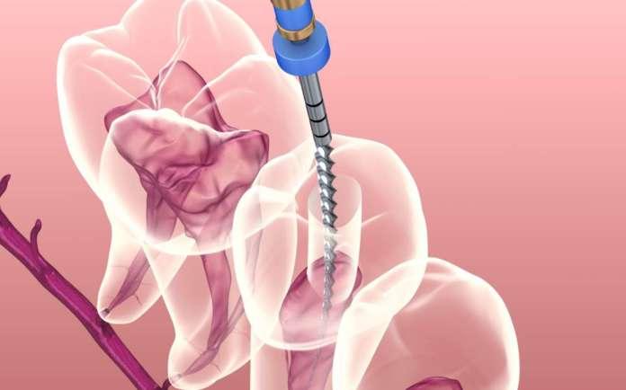 Trattamento endodontico_Impatto della sezione e della conicità dello strumento Ni-Ti nella sagomatura di canali a S