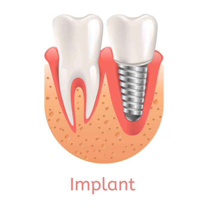 DM_il-dentista-moderno_Impianti-corti-revisione-sistematica-con-meta-analisi-con-attenzione-ai-risultati-a-lungo-termine
