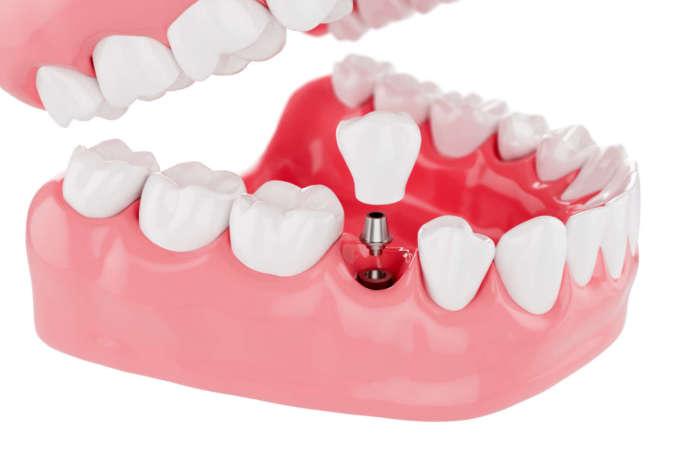 DM_il-dentista-moderno_Lo-spessore-della-mucosa-cheratinizzata-come-fattore-predittivo-chirurgico-nella-perimplantite.jpg