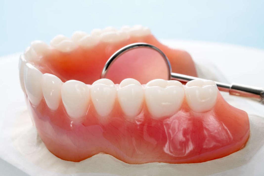 DM_il-dentista-moderno_overdenture_protesi.jpg