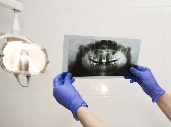 DM_il-dentista-moderno_radiografia_seno-mascellare.jpg