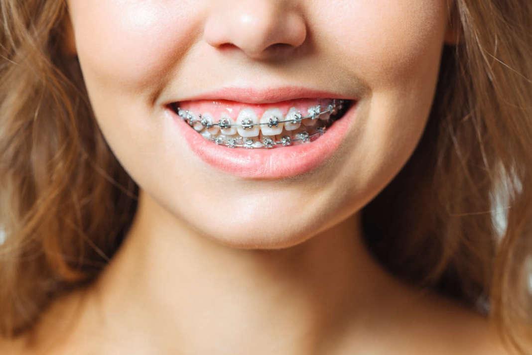 DM_il-dentista-moderno_momento-auxologico-in-ortodonzia.jpg_ancoraggio ortodoontico