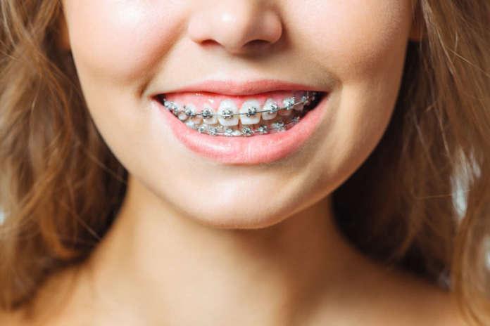 DM_il-dentista-moderno_momento-auxologico-in-ortodonzia.jpg