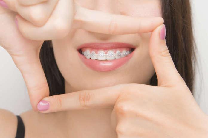 dm_il-dentista-moderno_stripping clear alligner