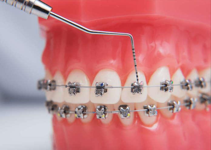 Complicanze ortodontiche e teleortodonzia durante la pandemia Covid-19
