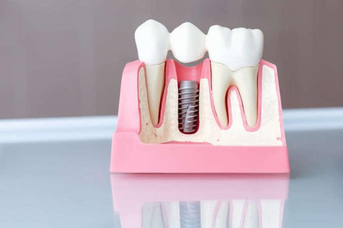 DM_il dentista moderno_Split Crest Technique con impianti immediati