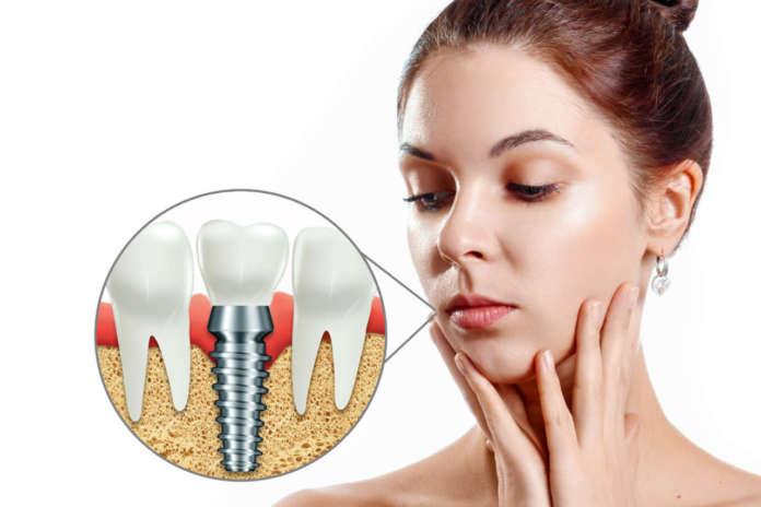 DM_il-dentista-moderno_impianti_implantologia_filettatura_stabilità primaria