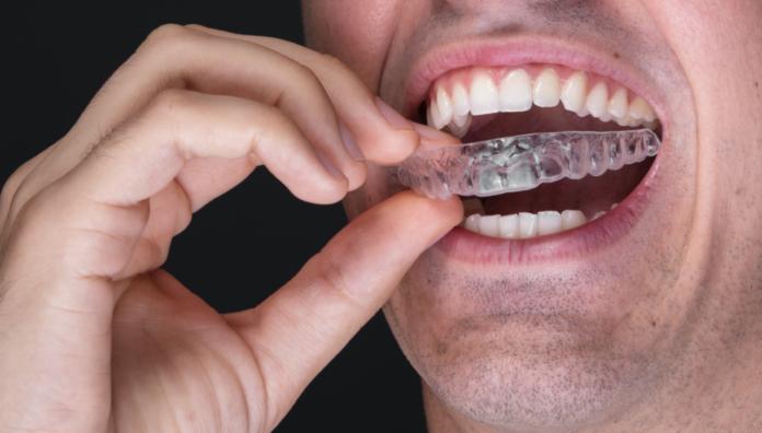 DM_il dentista moderno_clear aligner