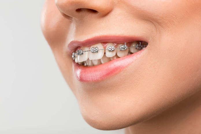 Durata Trattamento ortodontico nell'adulto