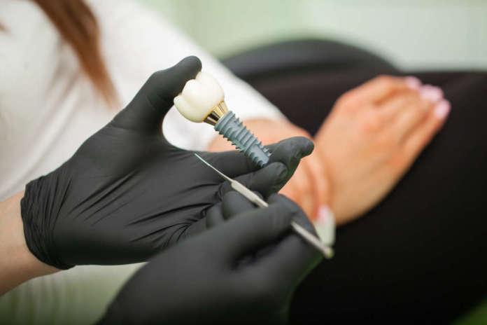 DM_il-dentista-moderno_La-posizione-dell'impianto-è-un-fattore-di-rischio-per-la-perimplantite.jpg