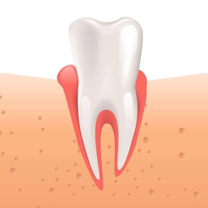 DM_il-dentista-iperplasia-gengivale