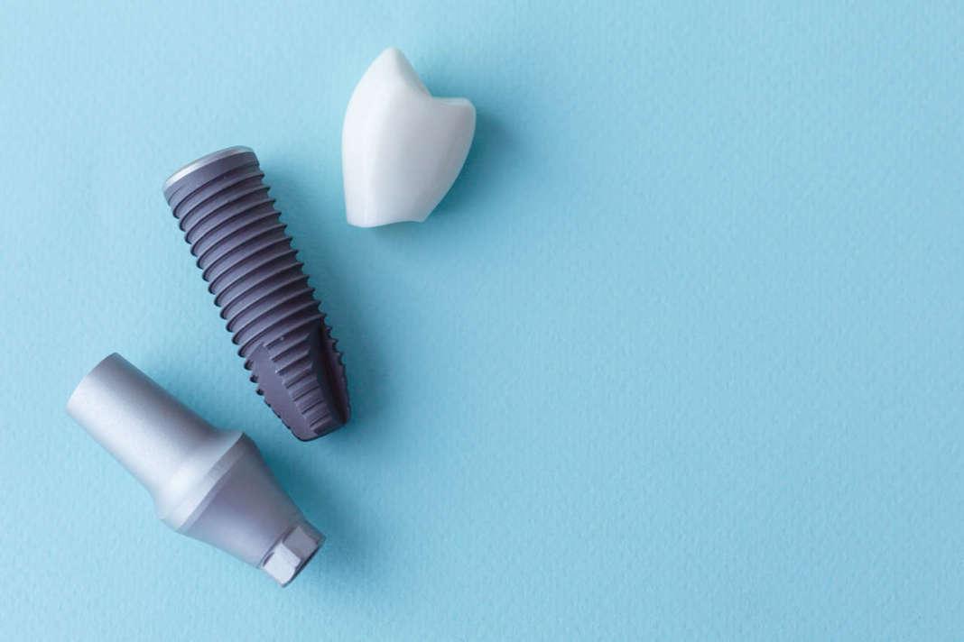 Dm_il dentista moderno_superfici implantari