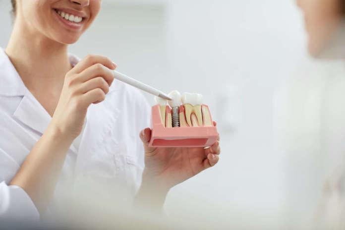DM_il-dentista-moderno_chirurgia-guidata
