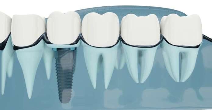 Dm_il dentista moderno_workflow digitale