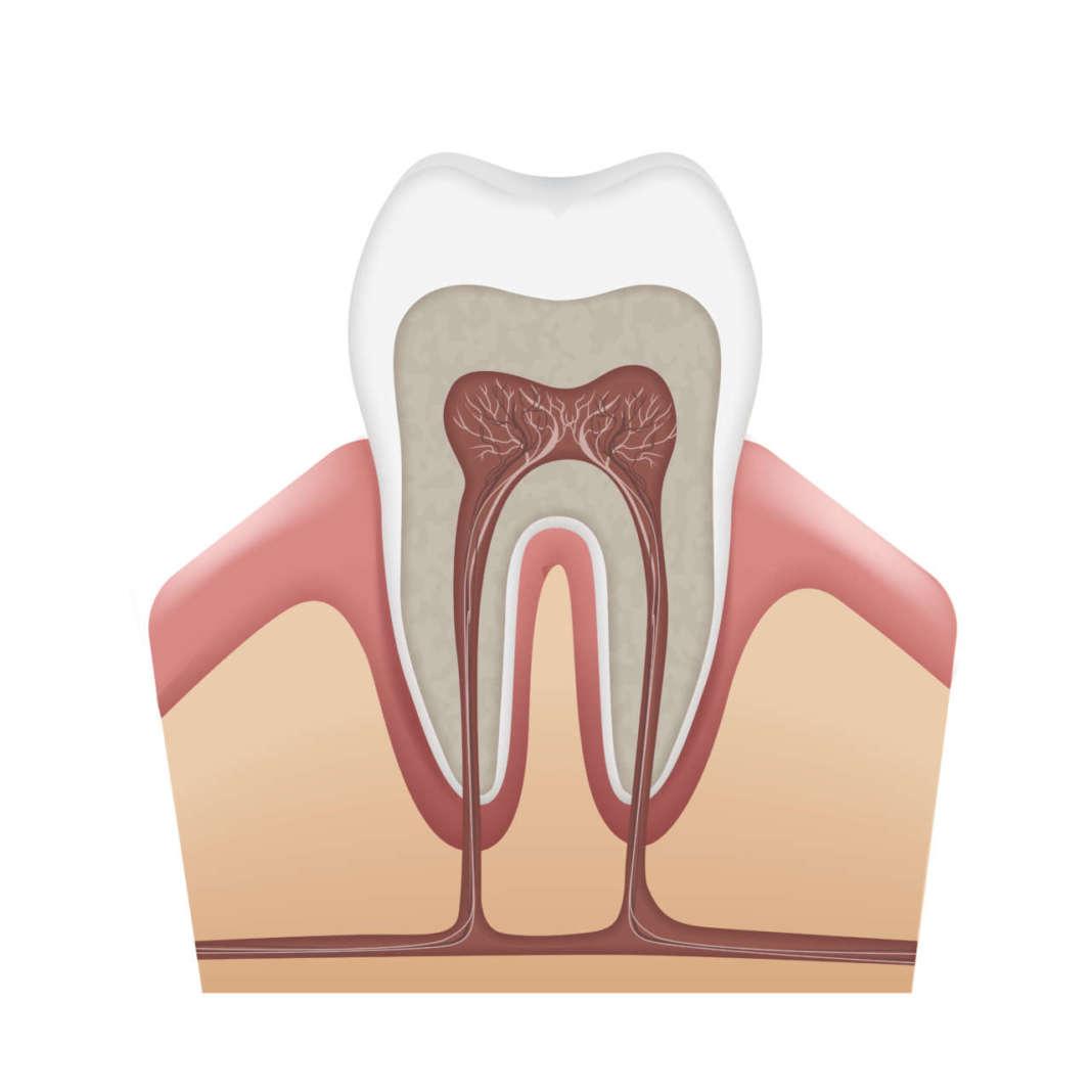 apertura di camera pulpare anatomia dente