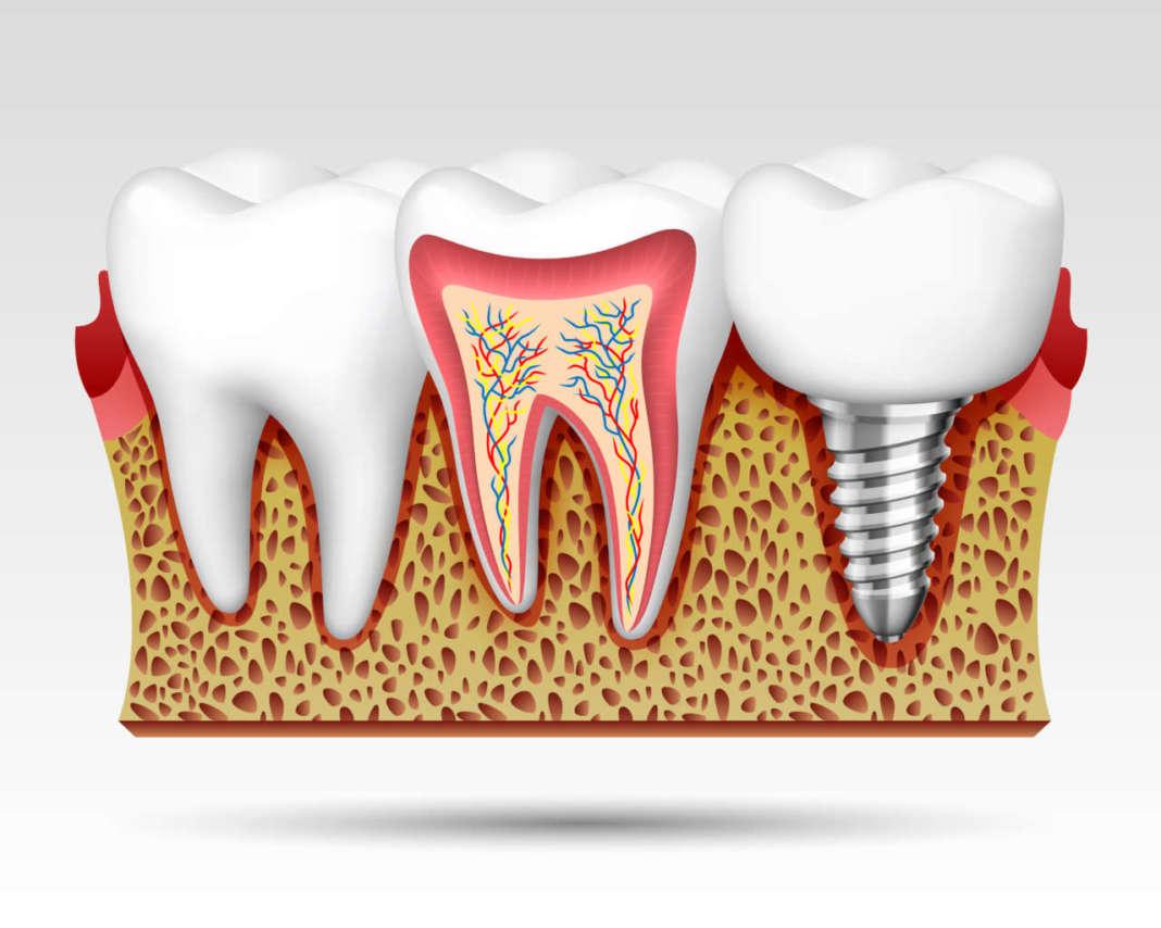 DM_il dentista moderno_fallimento implantare