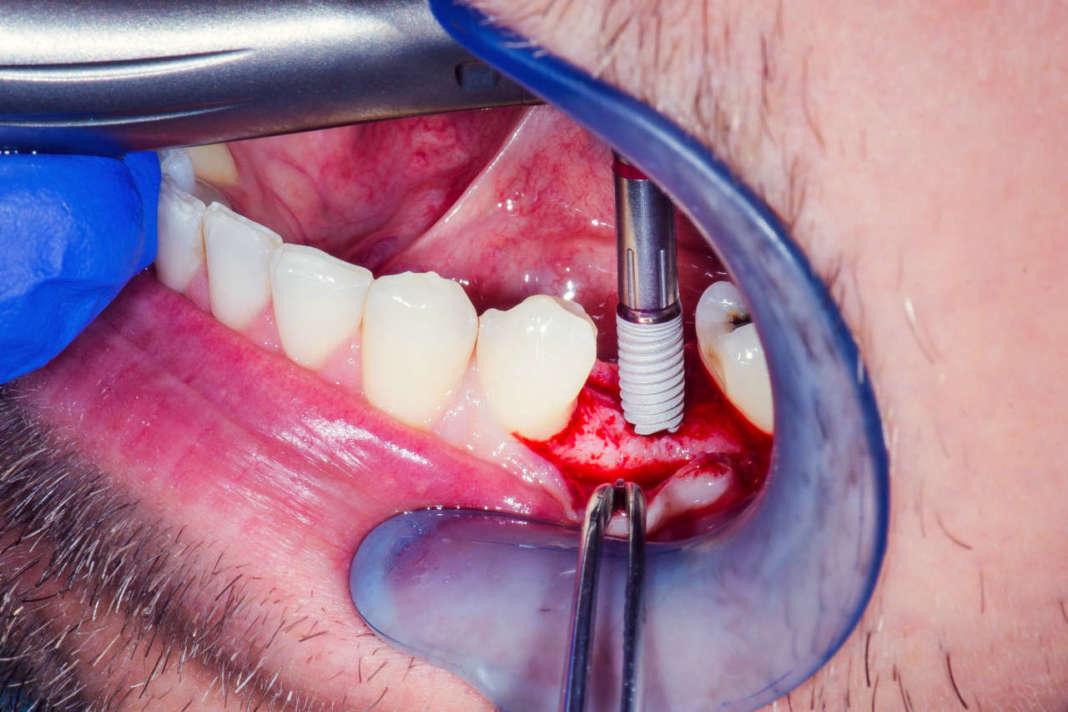 DM_il dentista moderno_chirurgia implantare_nervo alveolare inferiore