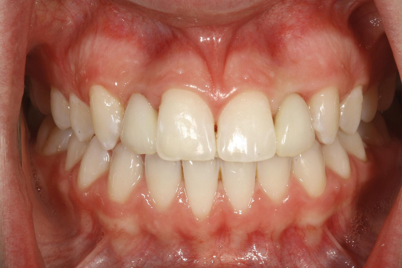 dentatura agenesia incisivo laterale