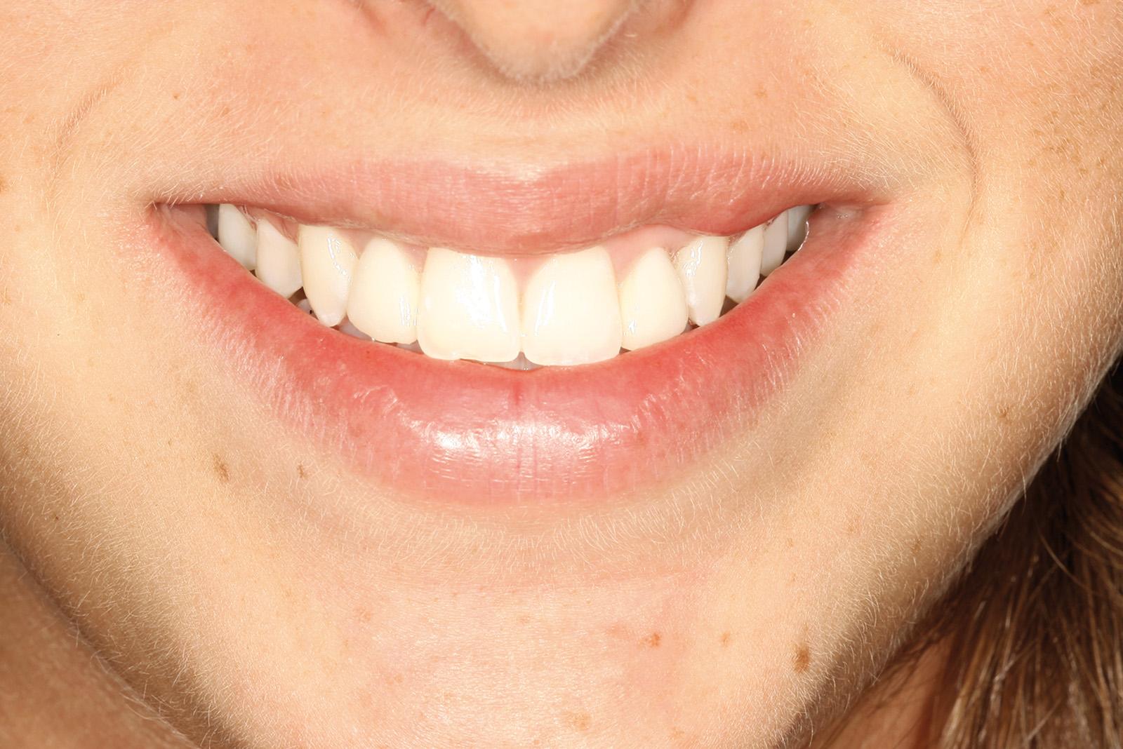 agenesia odontoiatrico diastema faccette